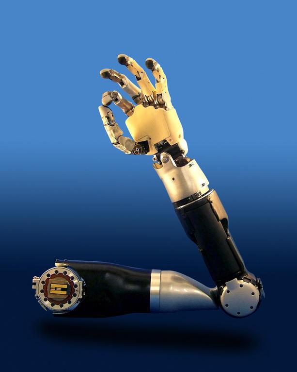 New+technology+advances+prosthetic+arm